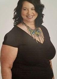 Sandra - Before Gastric Sleeve