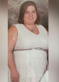 Tara - Before Bariatric Surgery