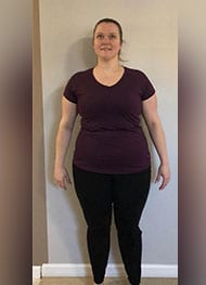 Veronica - After Gastric Sleeve Surgery