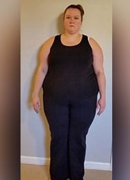 Veronica - Before Gastric Sleeve Surgery