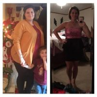 Ashley - Gastric Sleeve Reviews - Before and After