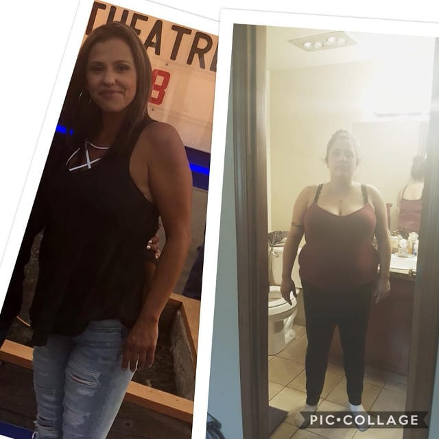 Before and After Photo - Gastric Sleeve Reviews
