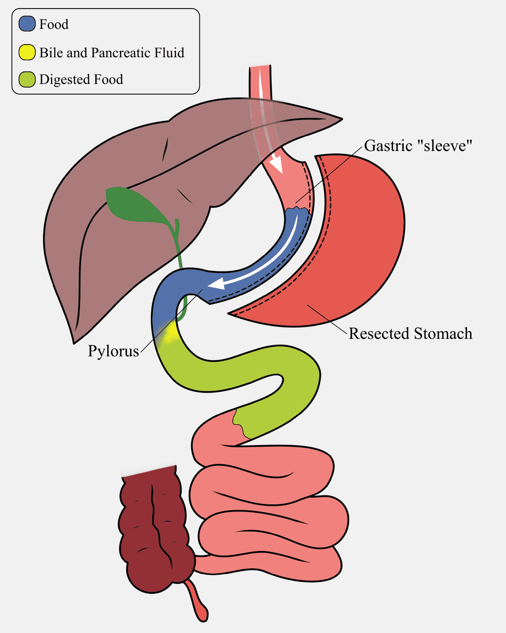 Gastric Sleeve Digestive Tract Image
