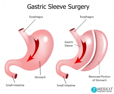 Gastric Sleeve Sugery - Mexico Bariatric Center