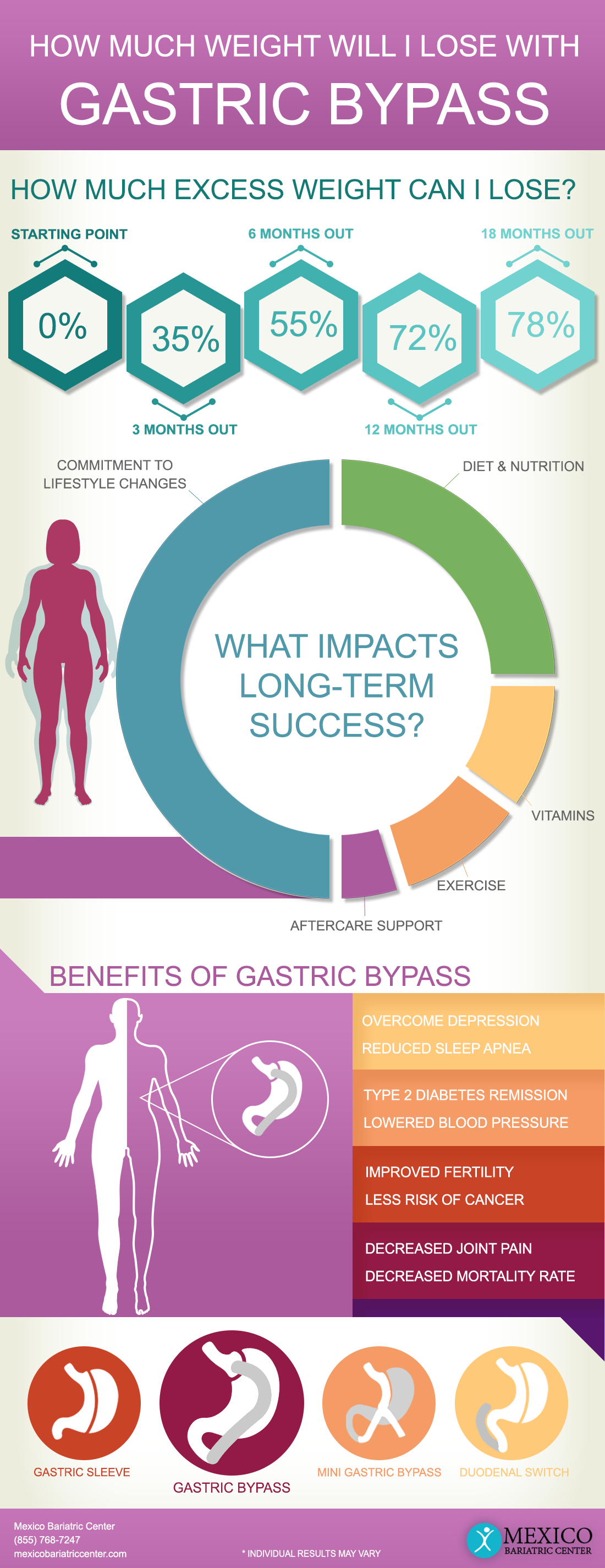 How Much Weight Will I Lose with Gastric Bypass Surgery RNY