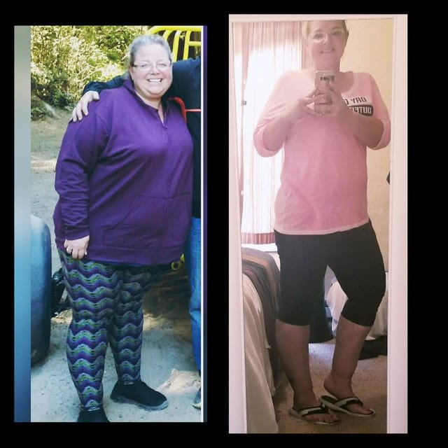 Kellie - Gastric Sleeve Reviews - Before and After