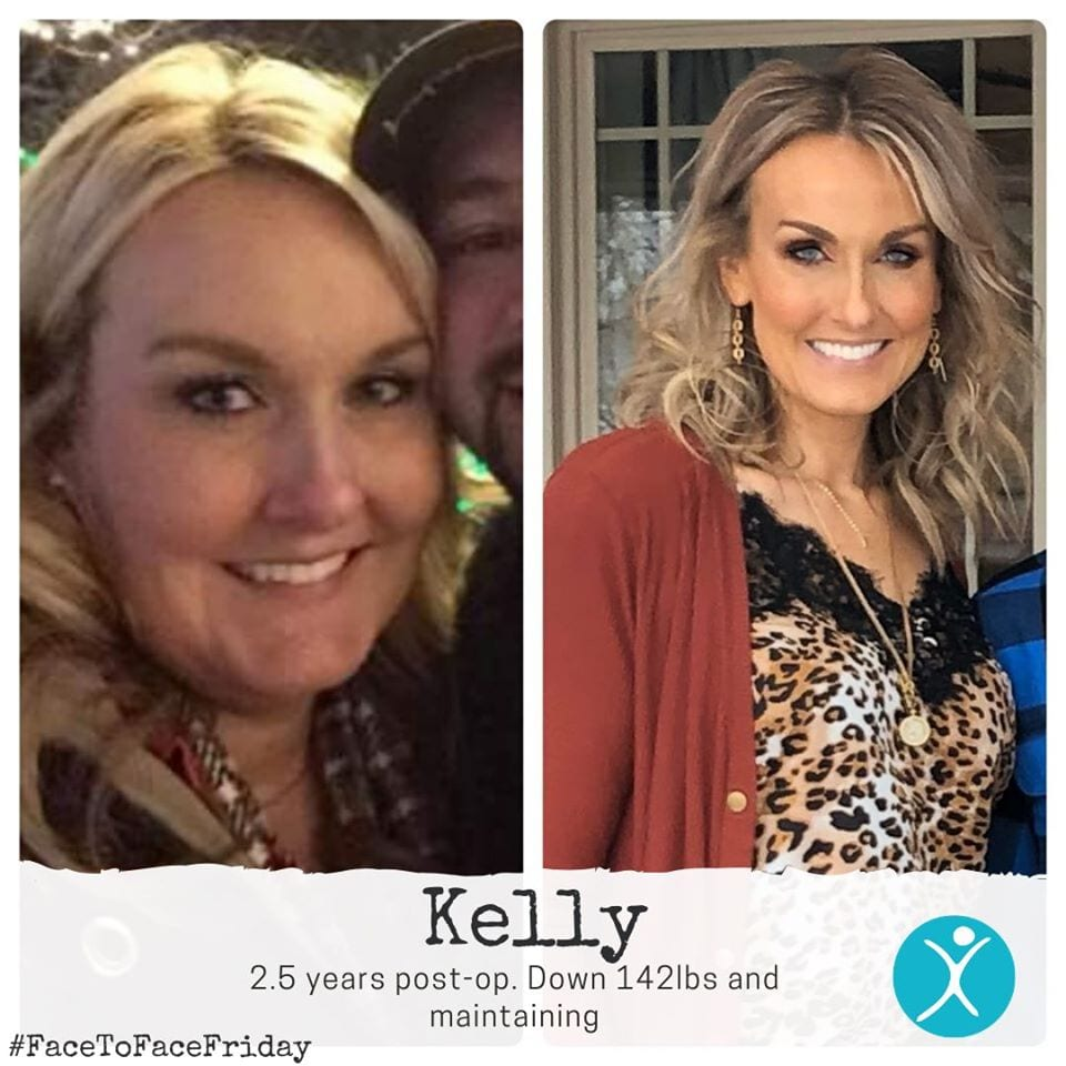 Kelly down 142 pounds after gastric sleeve surgery