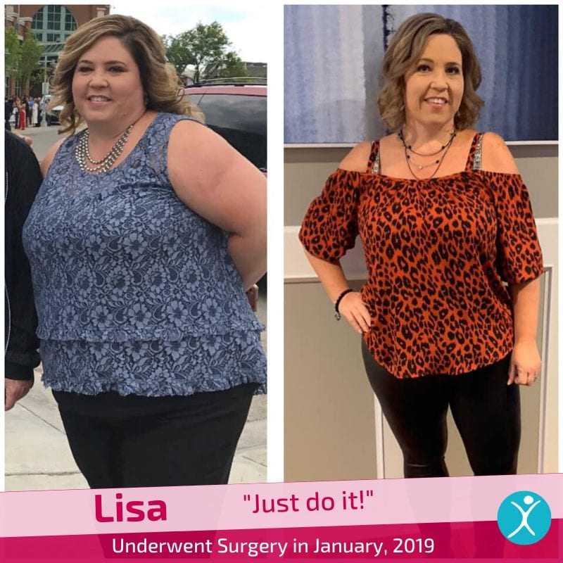 Lisa gastric sleeve surgery in January 2019 reviews