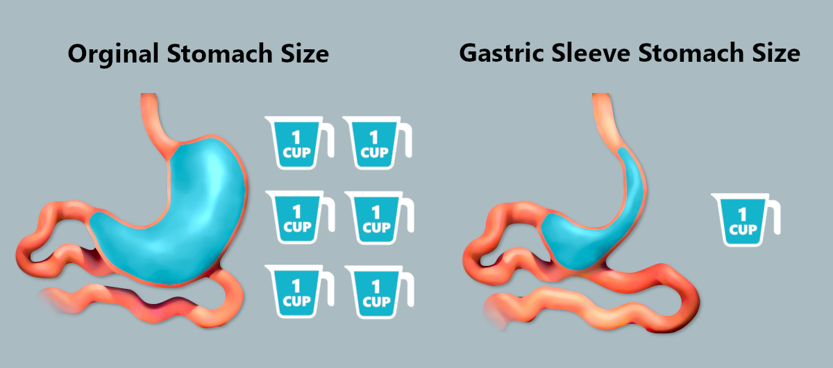 Stomach Size After Gastric Sleeve - Gastric Sleeve Stomach vs Normal Stomach