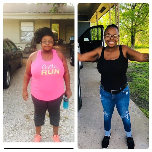 Takiya - Before and After - Is Gastric Sleeve Worth it