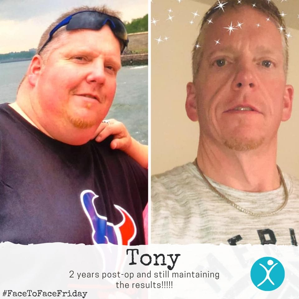 Tony 2 years post op and maintaining results gastric sleeve reviews