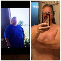 Tony - Gastric Sleeve Reviews - Before and After