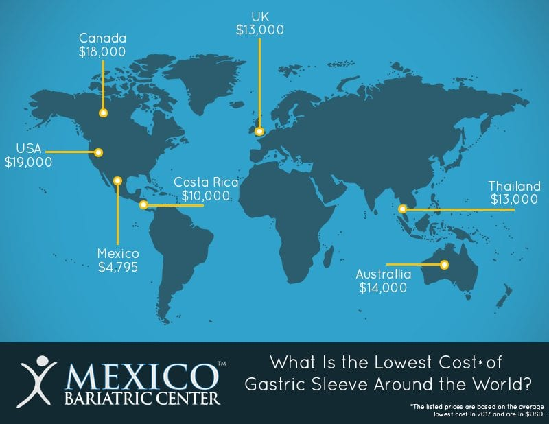 Gastric Sleeve Costs - Mexico Lowest Cost