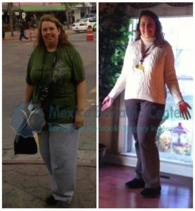 Kelly - Gastric Bypass Success Story