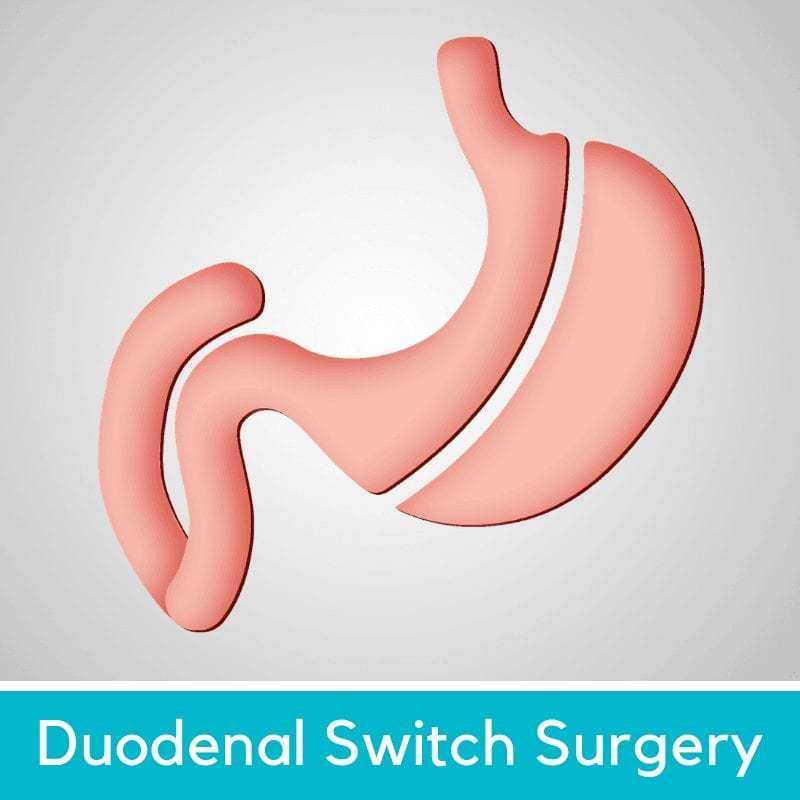 Duodenal Switch Surgery DS - Mexico Bariatric Center
