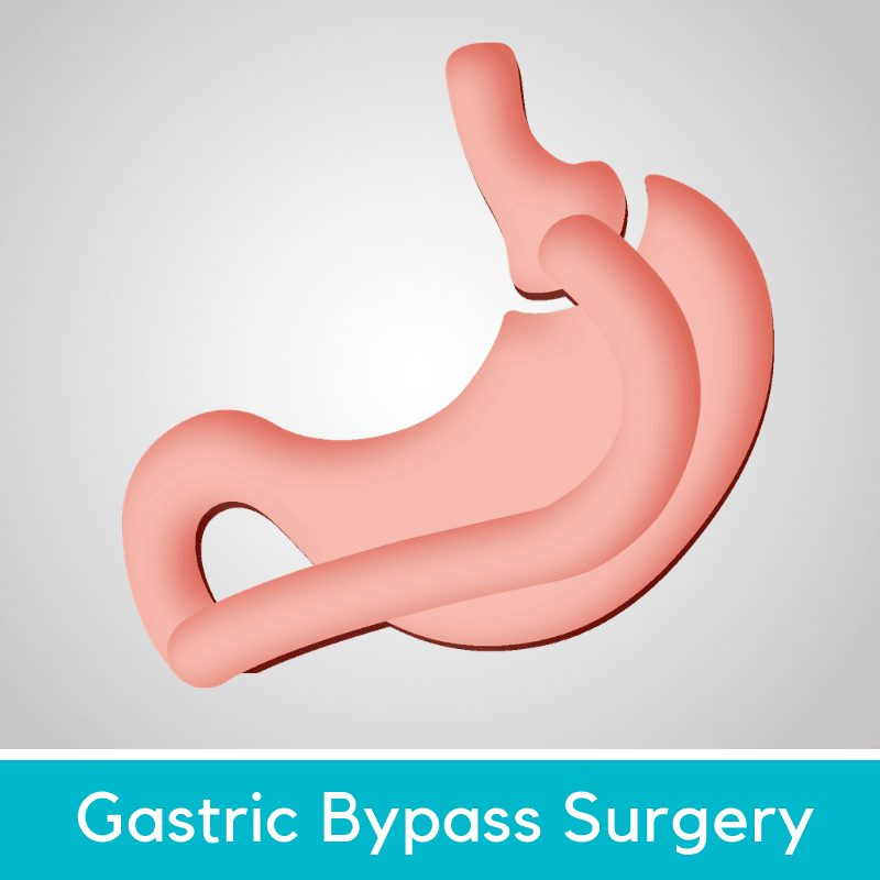 Gastric bypass surgery RNY - mexico bariatric center