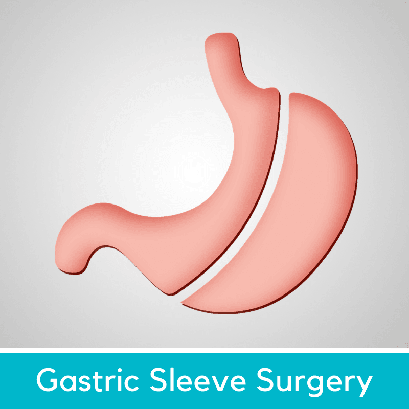 Gastric sleeve- mexico bariatric center