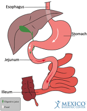 Jejunoileal Bypass