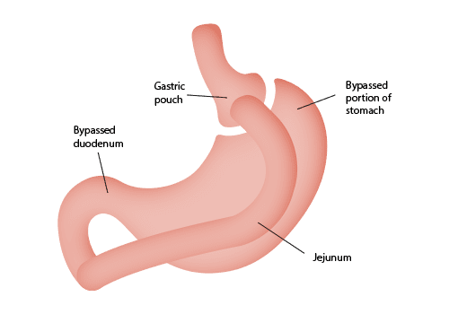 Gastric Bypass Surgery - Mexico Bariatric Center