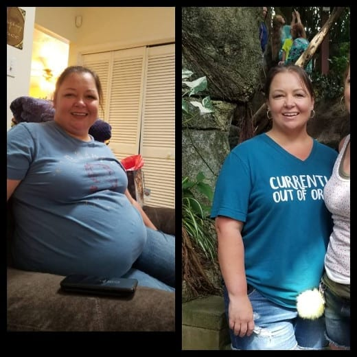 Jennifer Gastric Bypass Surgery Tijuana Mexico Before and After Testimonial