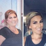 Madison-Gastric-Sleeve-Surgery-Gastric-Sleeve-Before-and-After-Pictures-Female-Photos