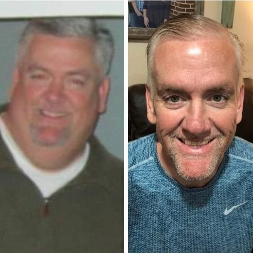 Rusty-VSG-Gastric-Sleeve-Surgery-Gastric-Sleeve-Before-and-After-Pictures-Male-Photos-1