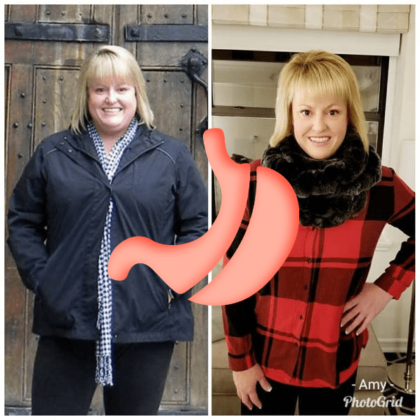 Weight Loss Surgery Success Stories - Gastric Sleeve Photos