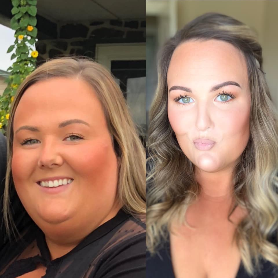 Traci - Gastric Sleeve August 2019