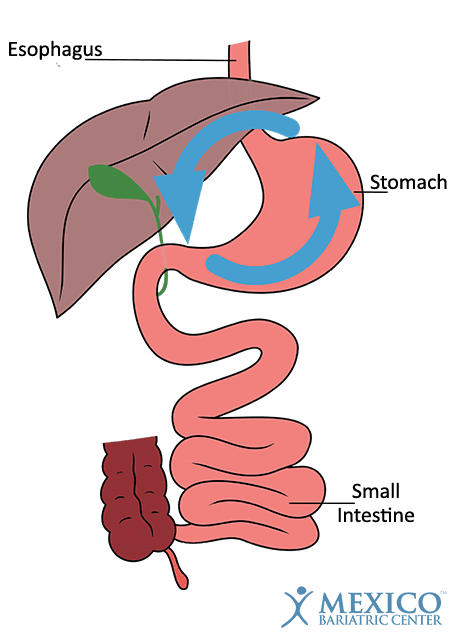 Gastric Surgery Revision