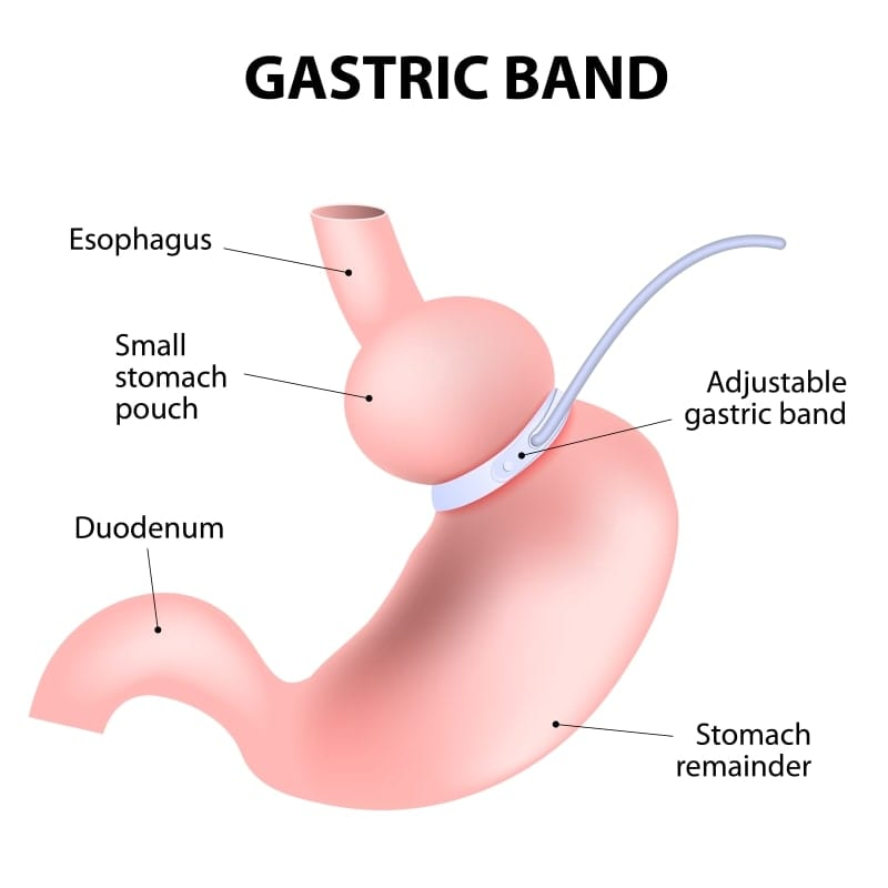 Lap Band Cost in Mexico - Gastric Banding in Tijuana