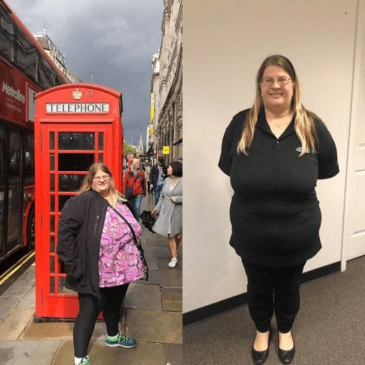 Michelle - Duodenal Switch Before and After Picture at Mexico Bariatric Center-min