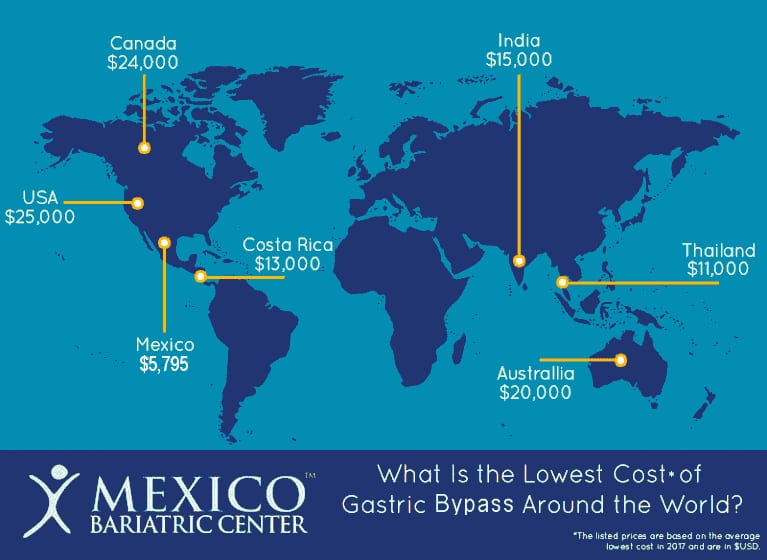 RNY Gastric Bypass Surgery Costs Around the World