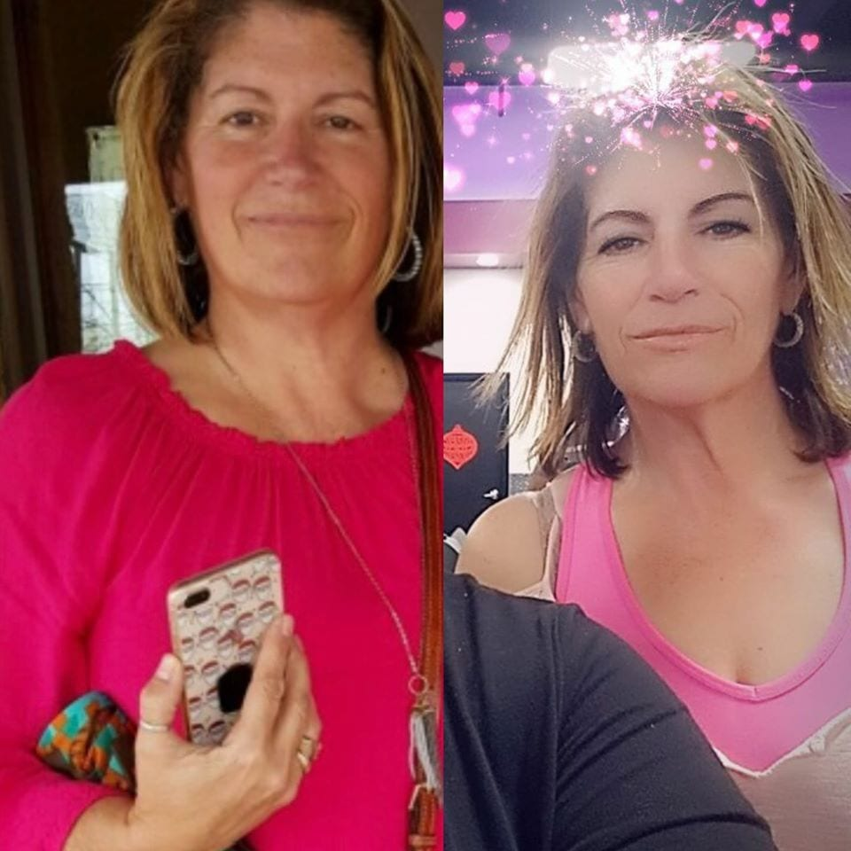 Sarita - Before and After Gastric Sleeve Photo
