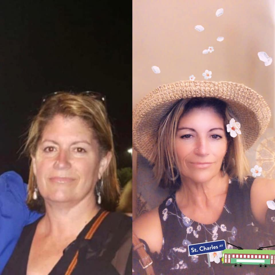 Sarita - Before and After Gastric Sleeve in Mexico Photo