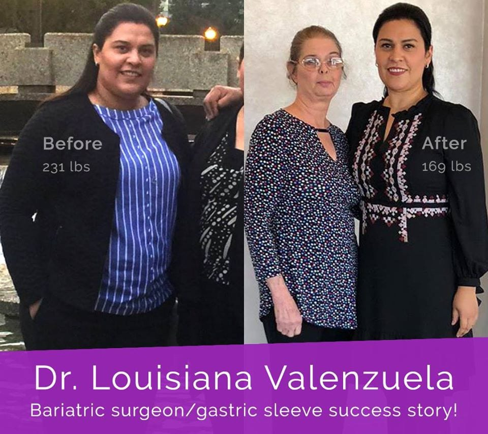 Dr. Louisiana Valenzuela Sanchez - Gastric Sleeve Surgeon and Patient Herself