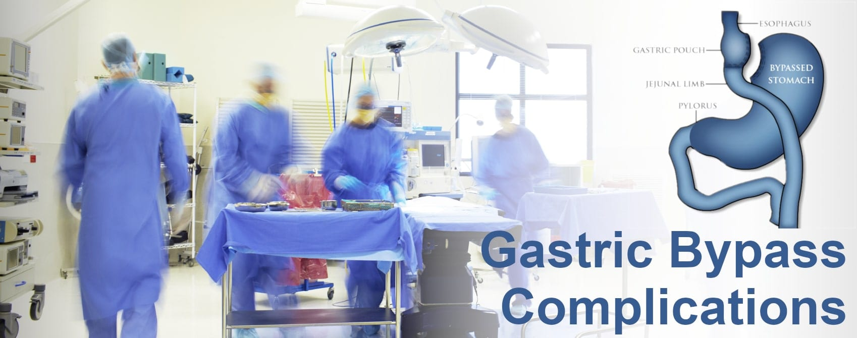 RNY Gastric Bypass Complications, Risks, and Side Effects - Surgery Room