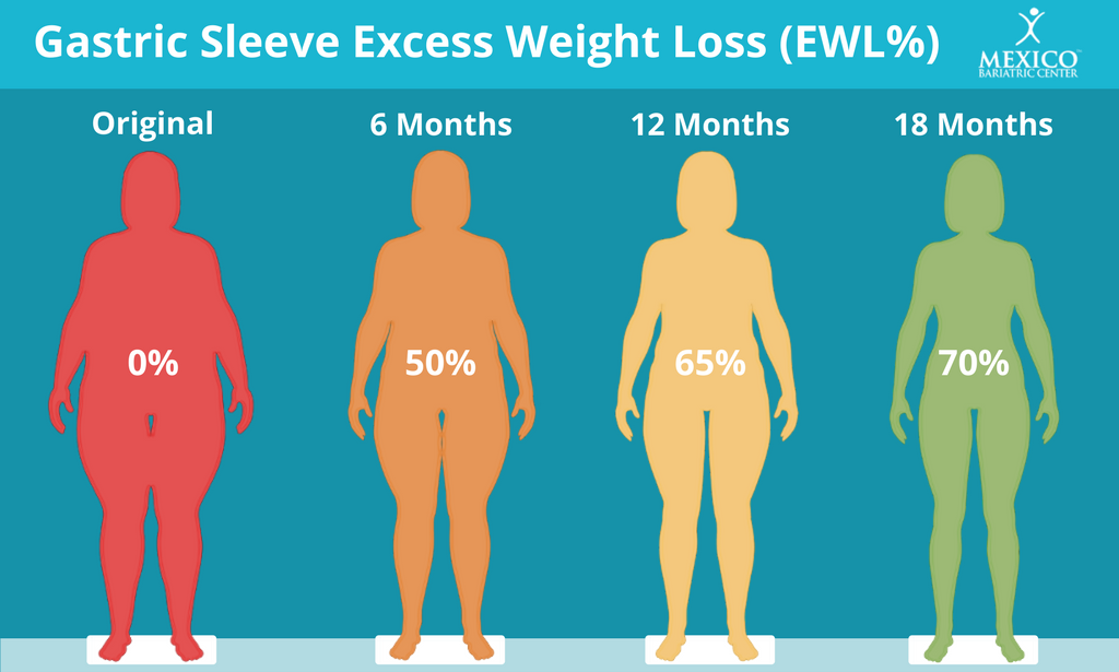 How Much Weight Will I Lose with Gastric Sleeve - Excess Weight Loss Timeline Chart