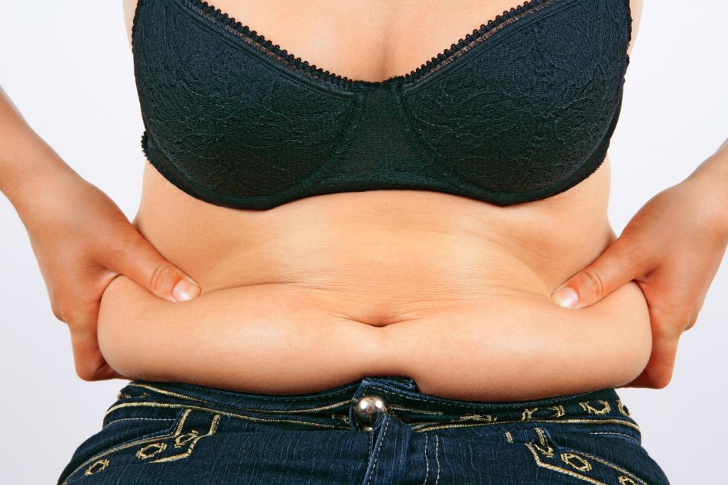 Panniculectomy in Mexico - Get Rid of Excess Skin