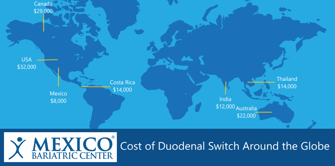 Cost of Duodenal Switch Surgery