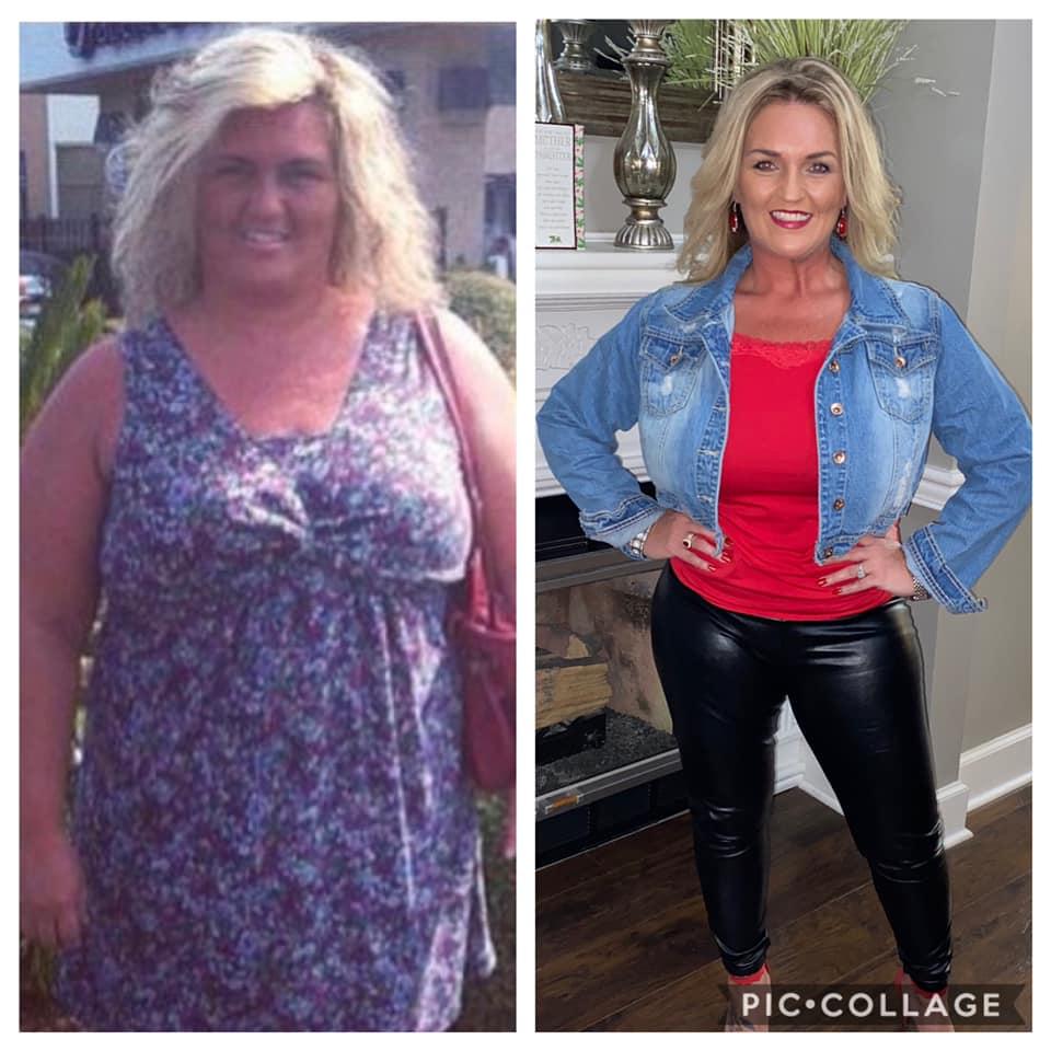 Joyce Total Transformation after Bariatrics and Plastics