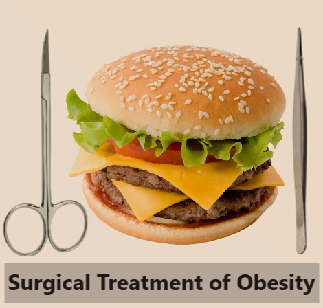Surgical Treatment of Obesity with Mexico Bariatric Center