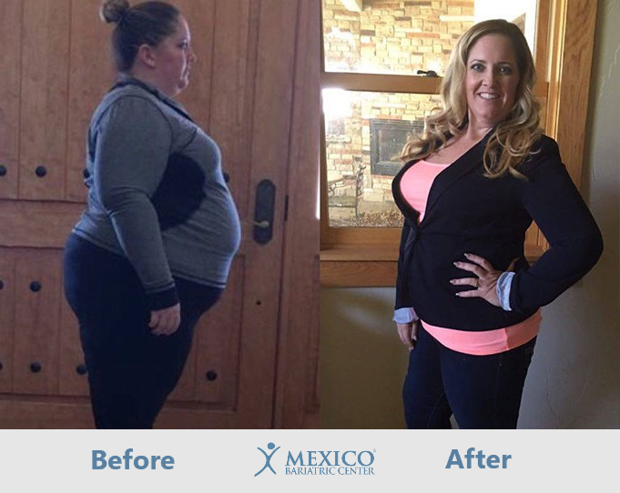 Crystal Before and After Gastric Sleeve in Mexico