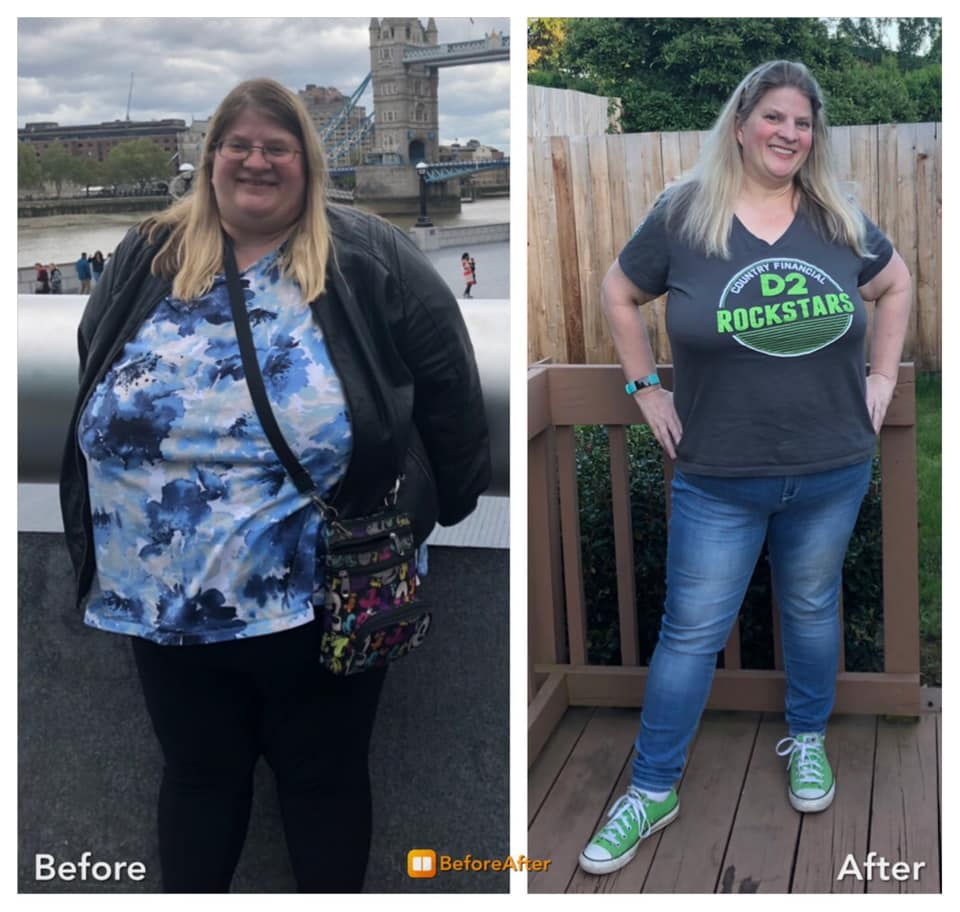 Michelle Before and After Weight Loss Surgery - Mexico Bariatric Center