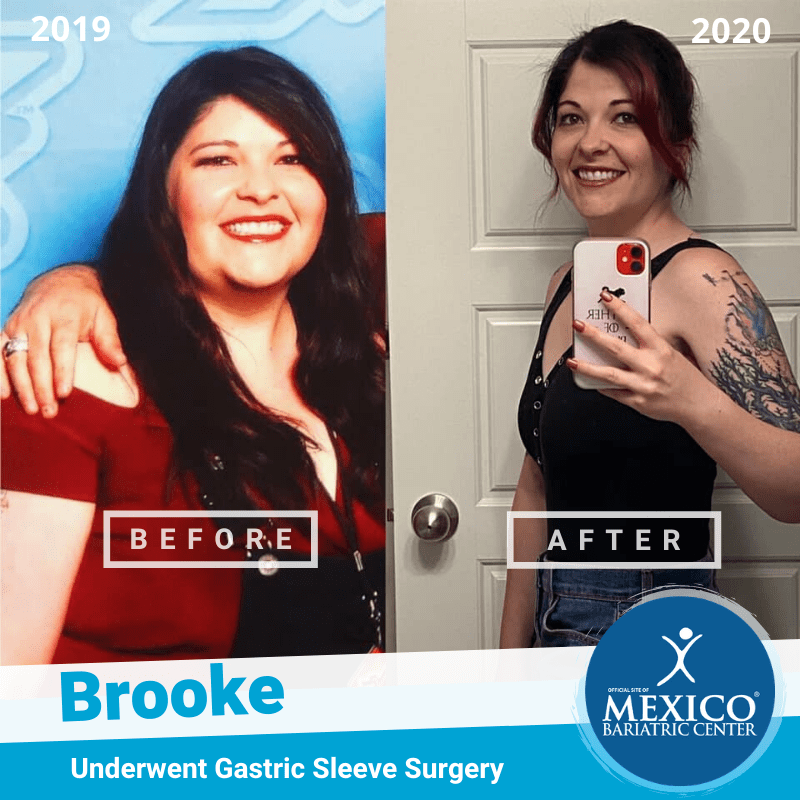 Brooke Gastric Sleeve Surgery Before and After Photo