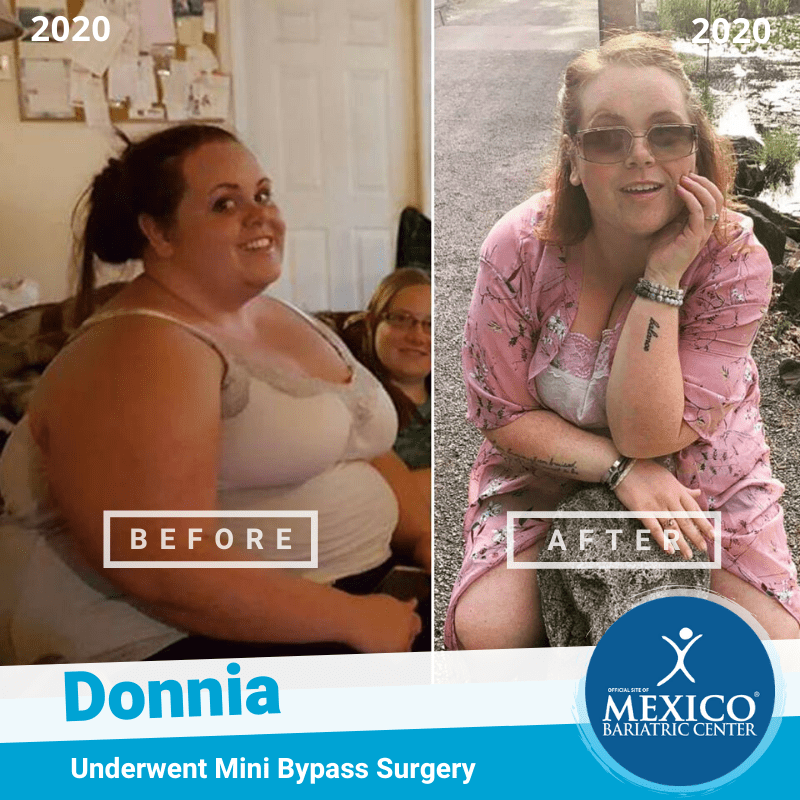 Jessica Gastric Sleeve Surgery Before and After Photo