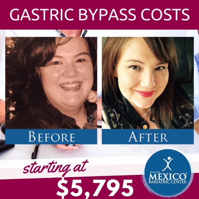 Gastric Bypass Costs at Mexico Bariatric Center