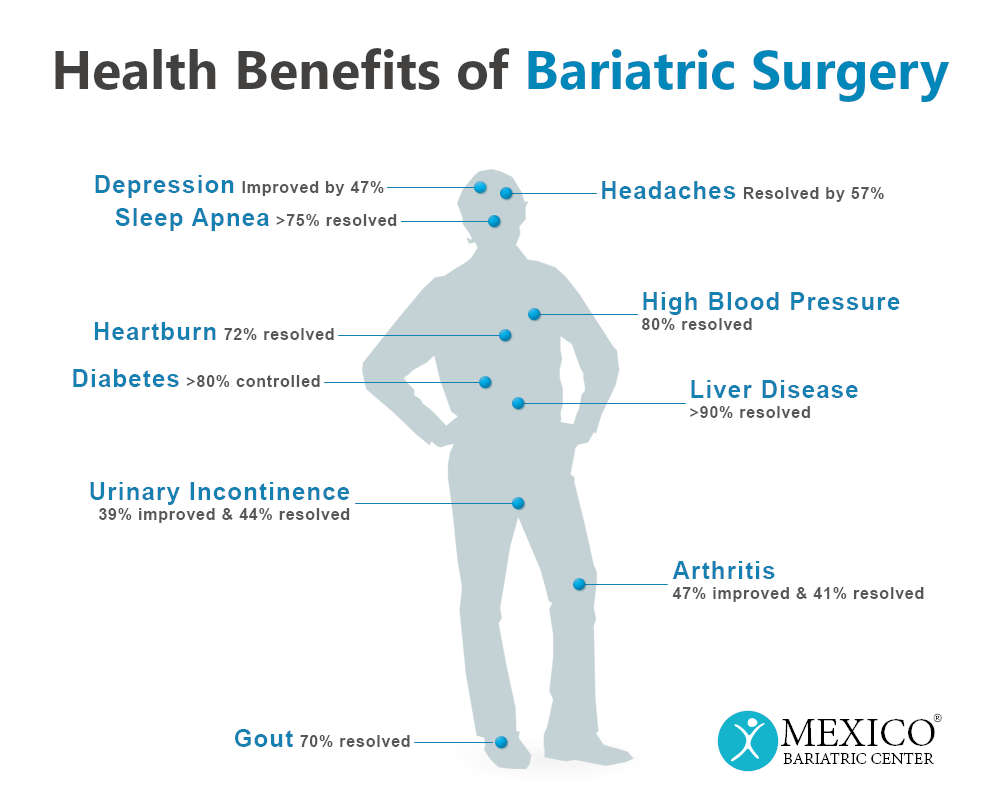 Health Benefits of Bariatric Weight Loss Surgery