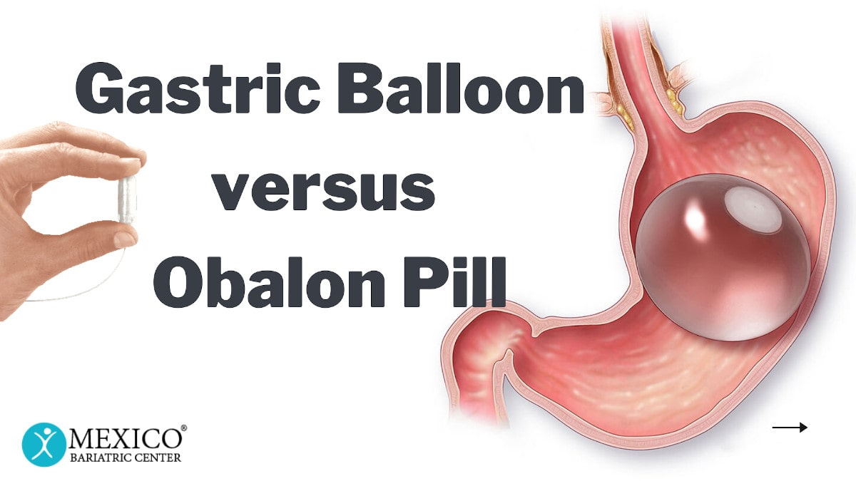 Intragastric Balloon vs. Obalon Pill Stomach Balloon