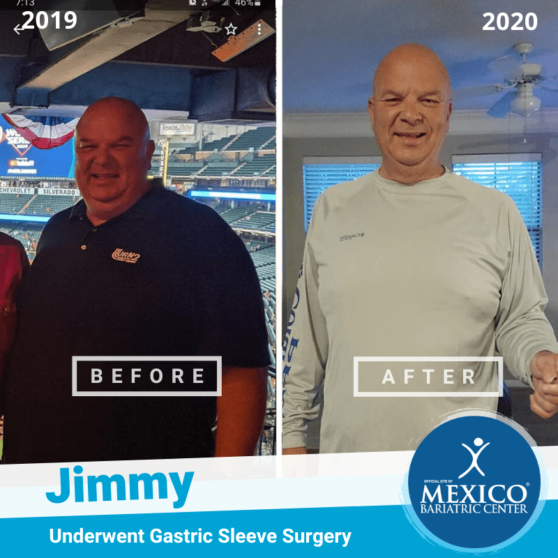 Jimmy Gastric Sleeve Surgery Before and After Photo