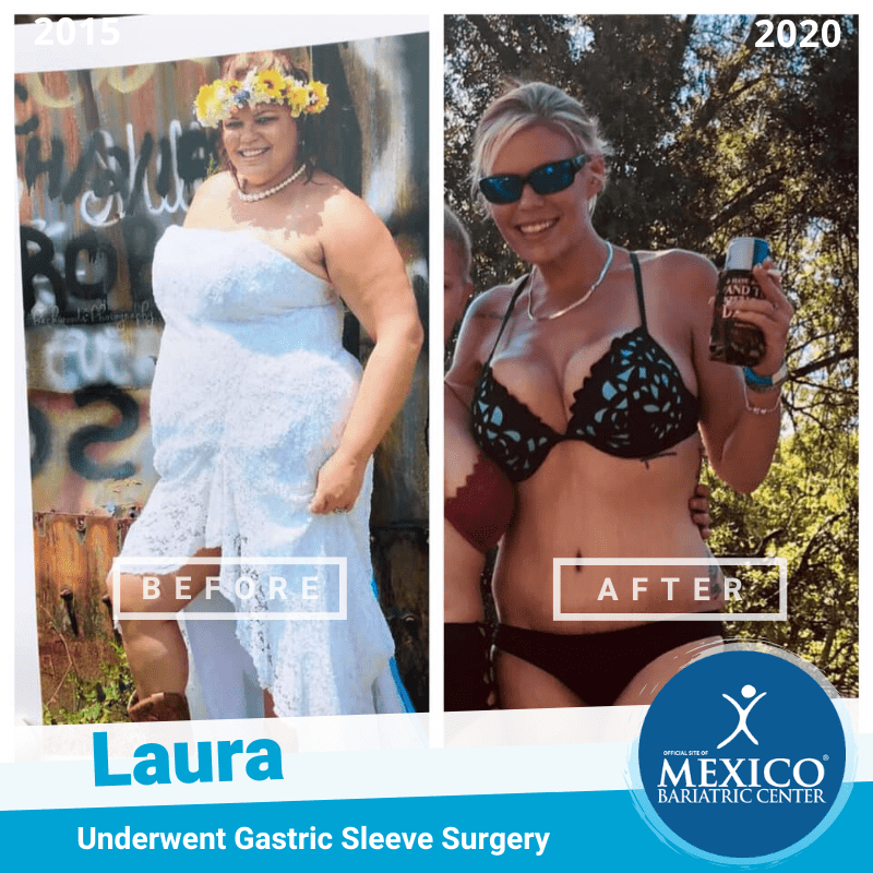 Laura Gastric Sleeve Surgery Before and After Photo